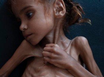 L'impérialisme, stade suprême de la famine...